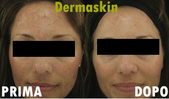 effetto dermaskin prima e dopo